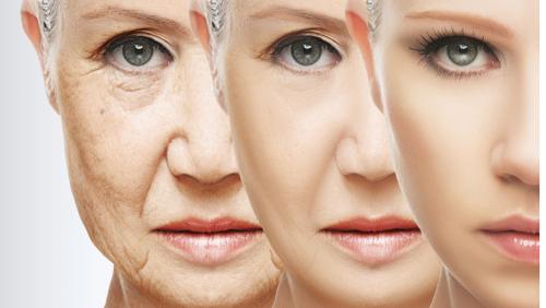 Alterungsprozess nimmt zu..
